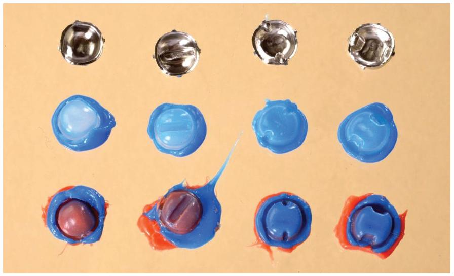 Frézované korunky pro testované typy preparací a silikonové otisky před provedením řezů. Zleva standardní preparace (SP), preparace s okluzním isthmem (OP), preparace s vestibulárními/orálními sloty (GP) a preparace s aproximálními kavitami (BP). Fig. 2 Milled crowns for tested preparation designs with replicas before sectioning (from left to right: standard preparation (SP), preparation with occlusal isthmus (OP), preparation with buccal/ lingual grooves (GP) and preparation with proximal boxes (BP).