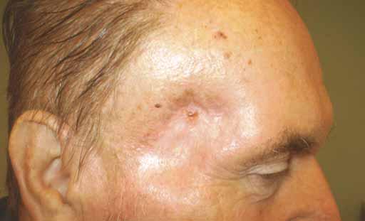 Výsledná regrese nádoru 1 měsíc po ukončení 2. série radioterapie.