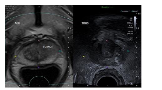 MRI/TRUS fúzní zobrazení prostaty s ložiskem charakteru PIRADS 5 v levém laloku ventrálně vhodném k TPBxP (archiv autora)<br> Fig. 6. MRI/TRUS fusion images of the prostate with a PIRADS 5 lesion in the anterior part of the left lobe sutable for TPBxP (author's archive)
