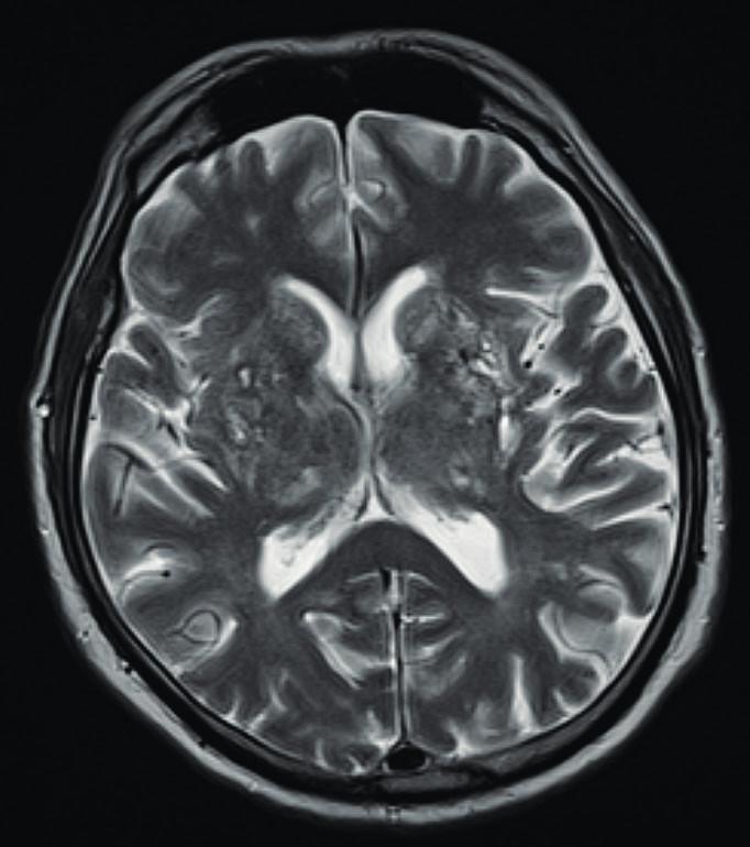 Magnetická rezonance mozku u pacienta s granulomatózou s polangiitidou a postižením CNS s obrazem vaskulitidy se změnami supratentoriálně a mnohočetnými akutními i subakutními ischemiemi (Radiologická klinika FN, Olomouc)