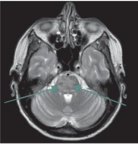 Syndrom reverzibilní encefalopatie v zadní cirkulaci (PRES syndrom). Vyšetření MR, transverzální T2 turbospin echo snímek – šipky označují místo patologického (T2 zvýšeného) signálu v oblasti mozkového kmene.<br> Fig. 2. Posterior reversible encephalopathy syndrome. MRI scan, transversal T2- -weighted turbospin echo image – arrows show pathological T2 hyperintensity in the brainstem.