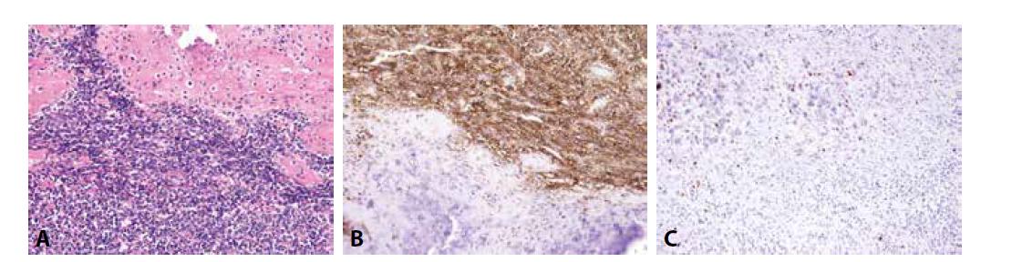 Mezenchymální chondrosarkom. A) přechod mezi kulatobuněčnou a chrupavčitou komponentou (H&E); B) exprese CD99 v kulatobuněčné složce; C) exprese S100 proteinu v chrupavčité složce (vše zvětšení x200).