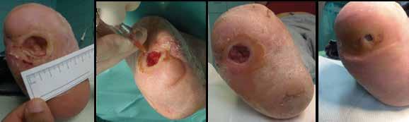 Obr. 3 | Instilácia Heberprotu-P do spodiny a okrajov dlhodobo sa nehojacej neuropatickej ulcerácie