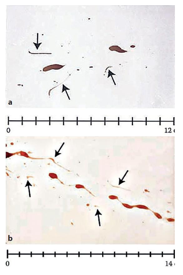 """a, 3b. """"Falošné"""" krvné stopy vytvorené švábom. Šípkami sú označené stopy vytvorené končatinami švába, väčšie stopy vznikli odtlačkom jeho brušnej časti (5)."""