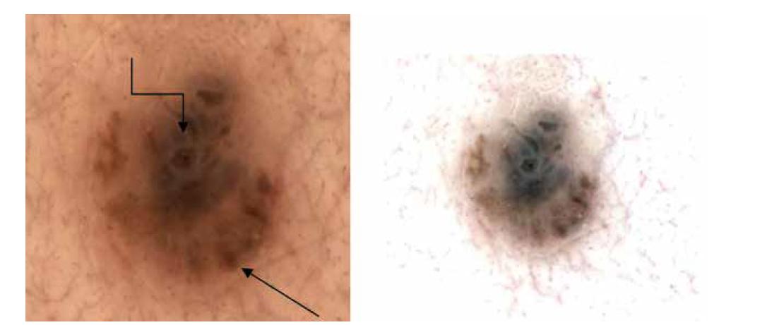 a,b. Dermatoskopicky nepravidelně rozložené robustní globule nestejné velikosti na periferii (šipka), šedavé zastření zejména střední a horní části (lomená šipka).