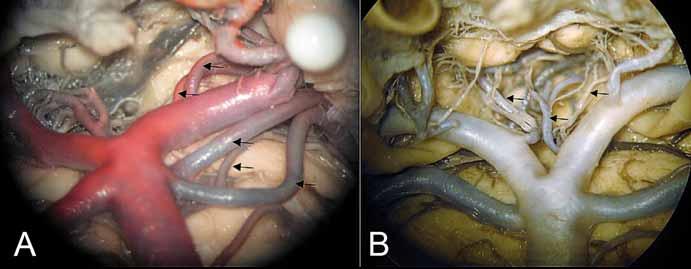 (A) Oblast bifurkace arteria basilaris, odstup arteria choroidea posterior medialis a arteria collicularis z P1 (kraniální 2 šipky), zdvojení arteria cerebelli superior a mezi nimi posterolaterální pontinní arterie. (B) Interpedunkulární perforátory (mediálně oboustranně) a anterolaterální (pedunkulární) větévka (šipka vlevo).<br> Fig. 4. (A) Area of basilar artery bifurcation with the medial posterior choroidal artery and collicular artery branching from P1 (2 upper arrows), double superior cerebellar arteries with the posterolateral pontine artery between them. (B) Interpeduncular perforators (medially bilaterally) and anterolateral – (peduncular) branch (left arrow).