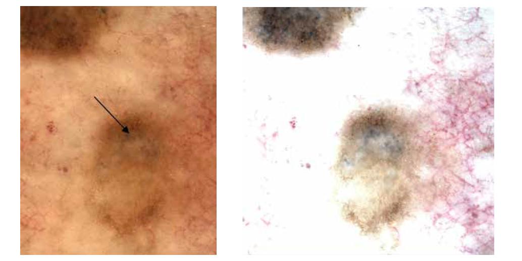 Obr. 3c,d. Dermatoskopicky tenká pigmentová síť na periferii, bezstrukturní střed, šedočerné tečky v horní polovině jako známky regrese (šipka)