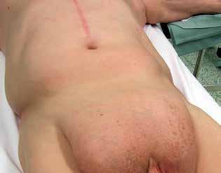 Typ III. pánevního pletence neboli gynekoidní<br> Fig. 3: Type 3 of pelvic girdle or gynaecoid