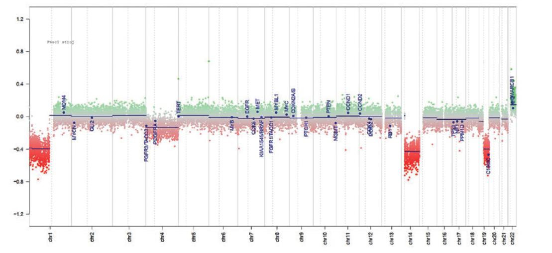 Výsledek vyšetření metylační SNP s průkazem kodelece1p/19q. Vyšetření metylační SNP (illumina EPIC) hodnocenoBrain_v11b4_ sample Version 2.0 určený pro nádory CNS na (www.molecularneuropathology.org), které prokázalo deleci 1p, deleci 14q, deleci 19q a gain 22q.<br> Červeně jsou značeny delece, zeleně zisky.