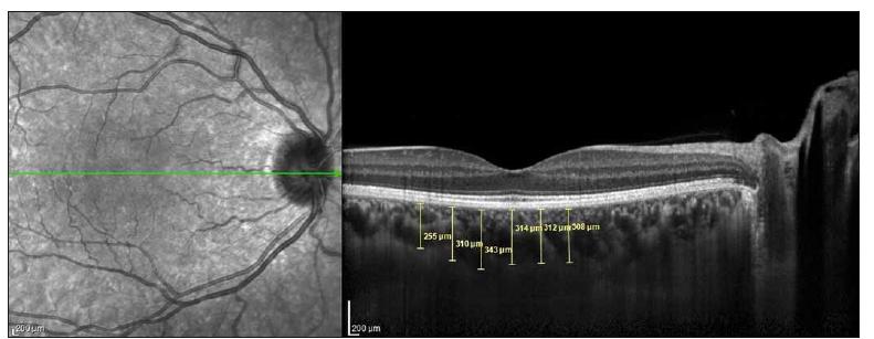 Choroidal thickness measurements performed at 6 points at 500-μm intervals in the optic coherence tomography cross-section.<br> Obr. 1. Měření tloušťky cévnatky bylo provedeno v 6 bodech s 500μm intervaly na řezu snímku získaném optickou koherenční tomografií.
