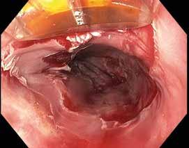 Obr. 13.2. Radiofrekvenční ablace HALO 90, v horní části obrázku fokální elektroda, dále distálně je patrná již ablovaná sliznice jícnu