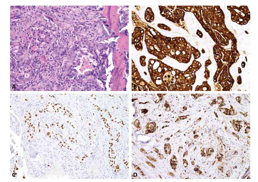 Metastáza nemalobuněčného karcinomu plic. A) struktury adenokarcinomu (H&E); B) cytoplazmatická exprese CK7; C) jaderná exprese TTF-1; D) cytoplazmatická exprese Napsin A (vše zvětšení x200).