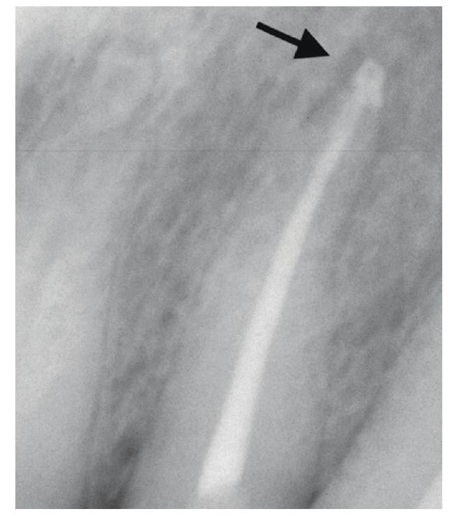 RTG snímek bezprostředně po zaplnění sextruzí materiálu do periodoncia <br> Fig. 11 X-ray image immediately after root canal filling with extrusion of material into the apical periodontal area