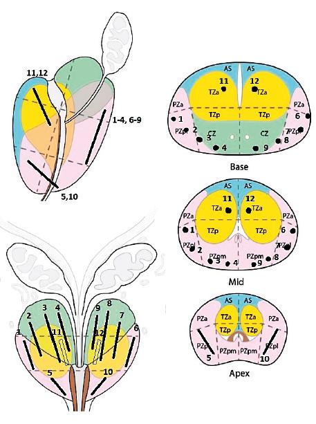 Schéma systematické biopsie prostaty (upraveno podle www.esur.org/esur-guidelines/prostate-mri)