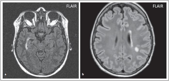 Pacienti s AQP4-IgGpozNMOSD, FLAIR, zvýšený signál při temporálním rohu pravé postranní komory (a), zvýšení signálu periependymálně při levé postranní komoře (b), dále je patrné nespecifi cké ložisko v hluboké bílé hmotě.<br> Fig. 5. AQP4-IgGposNMOSD patient, FLAIR, periventricular hypersignal in the right temporal horn of lateral ventricle (a), high signal periependymally in the left lateral ventricle (b), nonspecifi c lesion in centrum semiovale.