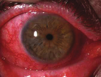 Diffuse scleritis with peripheral infiltration of cornea