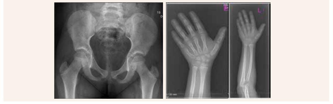 Skeletálny rádiograf naznačujúci zobákovité epifýzy rádia a širšie zápästné kostičky
