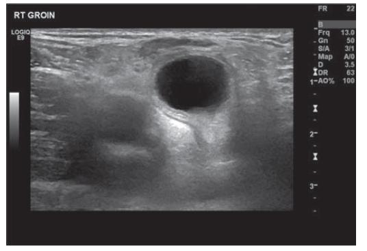 Ultrazvuk pravé kyčle zobrazující cystu<br> Fig. 2: US right groin showing cyst
