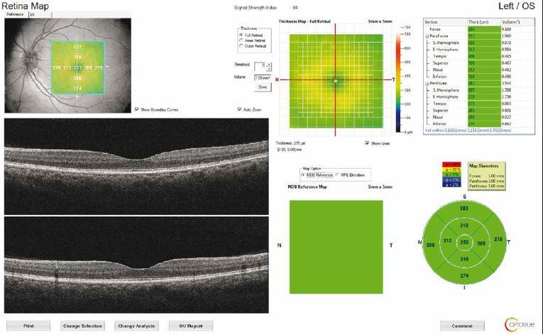 Retinal map output of a patient with idiopathic intracranial hypertension. The average thickness of the nine regions and topographic map of retinal thickness are shown on the diagrams. Fovea thickness (central 1 mm) was noted.<br> Obr. 2. Výsledek mapování sítnice u pacienta s idiopatickou intrakraniální hypertenzí. V grafu je znázorněna průměrná tloušťka devíti oblastí a topografická mapa tloušťky sítnice. Byla zaznamenána tloušťka fovey (centrálně 1 mm).