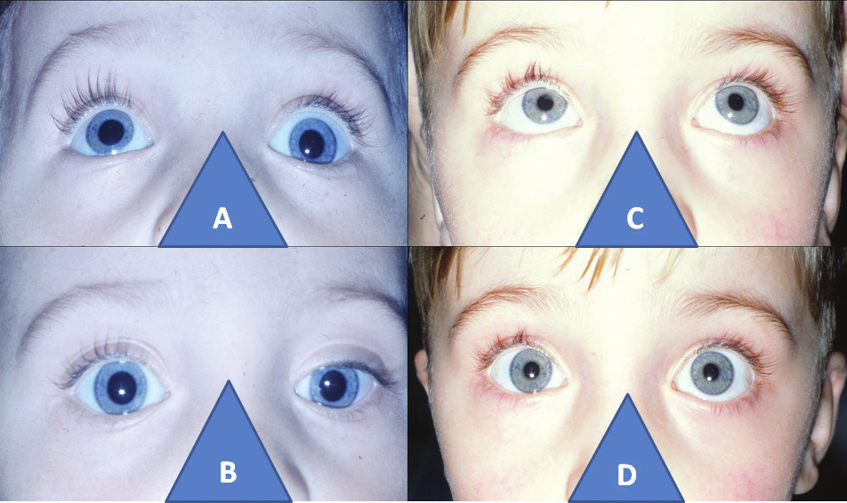 3-year-old boy with left-sided elevator palsy: elevation defect in left eye (A), with hypotropia on same side before cul-de-sac operation (B), and bilateral loose elevation (C), with parallel position of eyes two years after surgery (D)