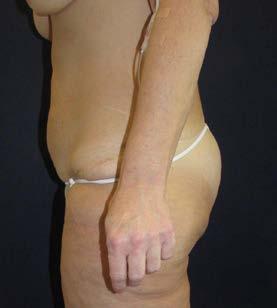 Lower body lifting – boční pohled pooperačně