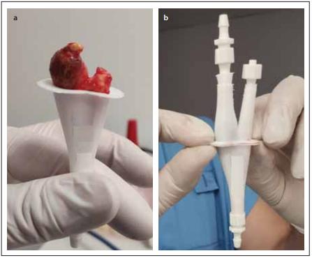 Vložení aterosklerotického plátu vyjmutého během karotické endarterektomie do vytištěného 3D modelu karotické bifurkace.<br> Fig. 2. Insertion of the atherosclerotic plaque removed during carotid endarterectomy into the printed 3D model of carotid bifurcation.