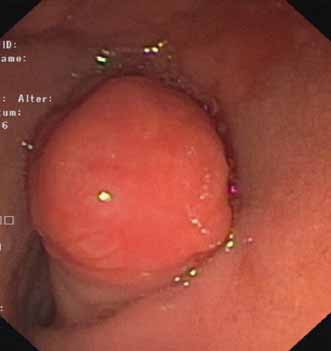 Polyp prolabujúci z D2 do bulbu duodéna.<br> Fig. 1. A polyp prolapsing in the duodenal bulb.