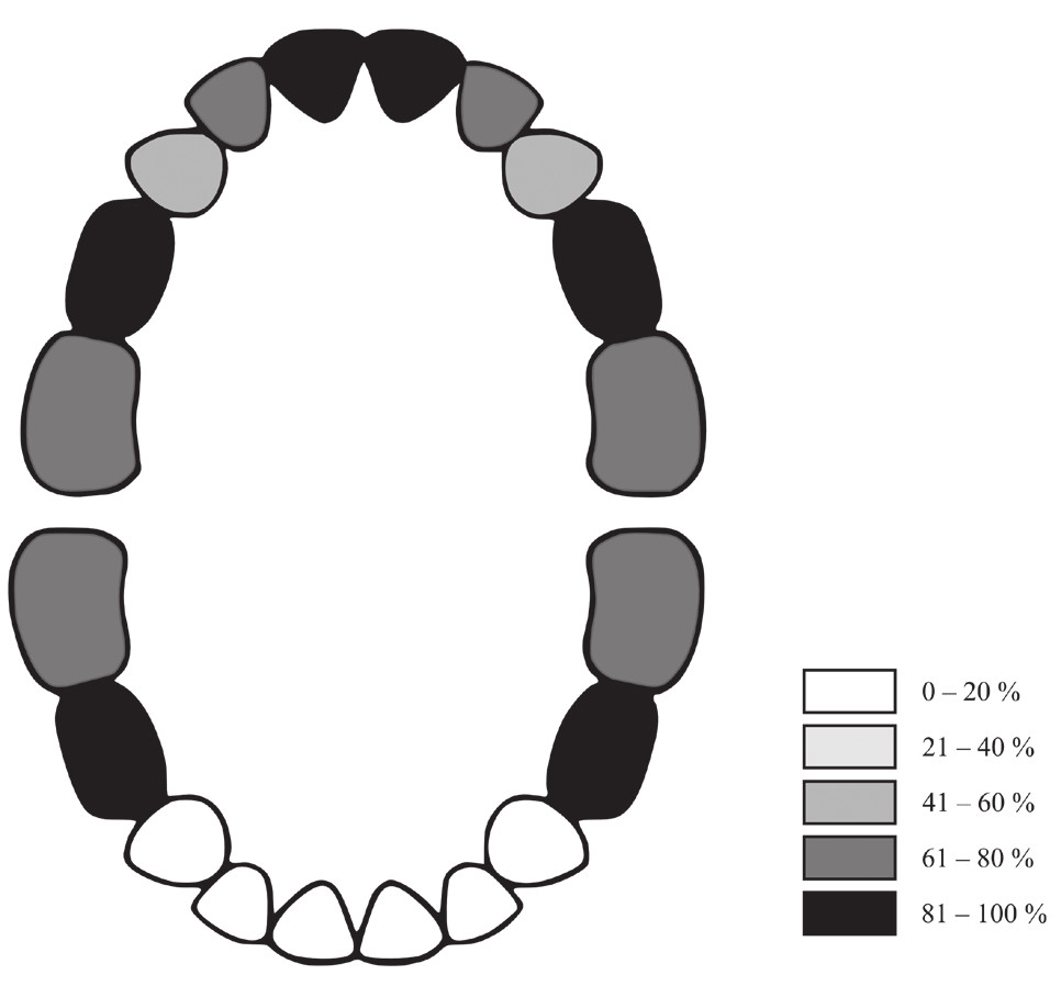 Obr. 1 Grafické znázornění výskytu zubního kazu v dočasné dentici u dětí se sECC (škála definuje procento dětí, které mají postižen zubním kazem daný zub)