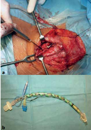 Peroperačný neuromonitoring <br> a: verifikácia signálu NLR sondou, b: snímacia elektróda nalepená na intubačnej kanyle<br> Fig. 1: Perioperative neuromonitoring  a: verification of the signal by the NLR probe; b: sensing electrode is attached to the intubation cannula