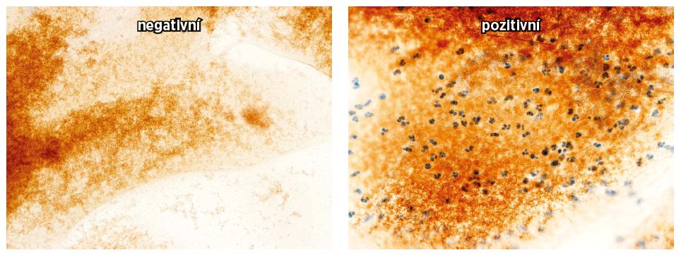 Hustota NK buněk CD 56+ v ovulačním cervikálním sekretu