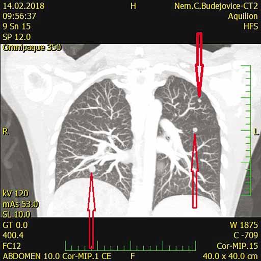 CT s nálezom pľúcnych metastáz (šípky).<br> Fig. 3. CT scan shows lung metastases (arrows).