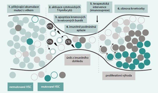 Vývoj klonální proliferace ze selhání kostní dřeně. Mutace, jež mohou postihovat kmenové krvetvorné buňky (HSC) a které se za normálních okolností vůbec nemusejí projevit, mohou při rozvoji AA na podkladě apoptózy způsobené cytotoxickými T-lymfocyty (CTL) uniknout z imunitního dohledu, pokud jsou méně imunogenní než normální buňky či rezistentní na CTL vyvolanou apoptózu. Tyto buňky takto získávají selektivní klonální proliferační výhodu, což vede k postupné expanzi mutovaného klonu. Je otázkou, do jaké míry může být tento proces podpořen imunosupresivní léčbou podanou při selhání kostní dřeně. Upraveno podle [9]