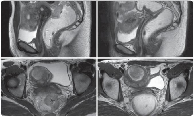 Magnetická rezonancia malej panvy pred a po chemorádioterapii.