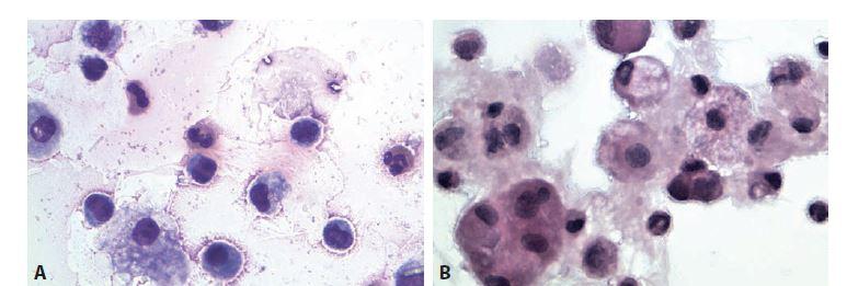 Sérologicky potvrzená borelióza. Muž 68 let, kolenní kloub.<br> A: Monocyty, eozinofi lní granulocyty, narušené synovialocyty. MGG, 600x.<br> B: Skupinka synovialocytů, monocyty, makrofágy, lymfocyty, neutrofi lní granulocyt. HE, 600x.