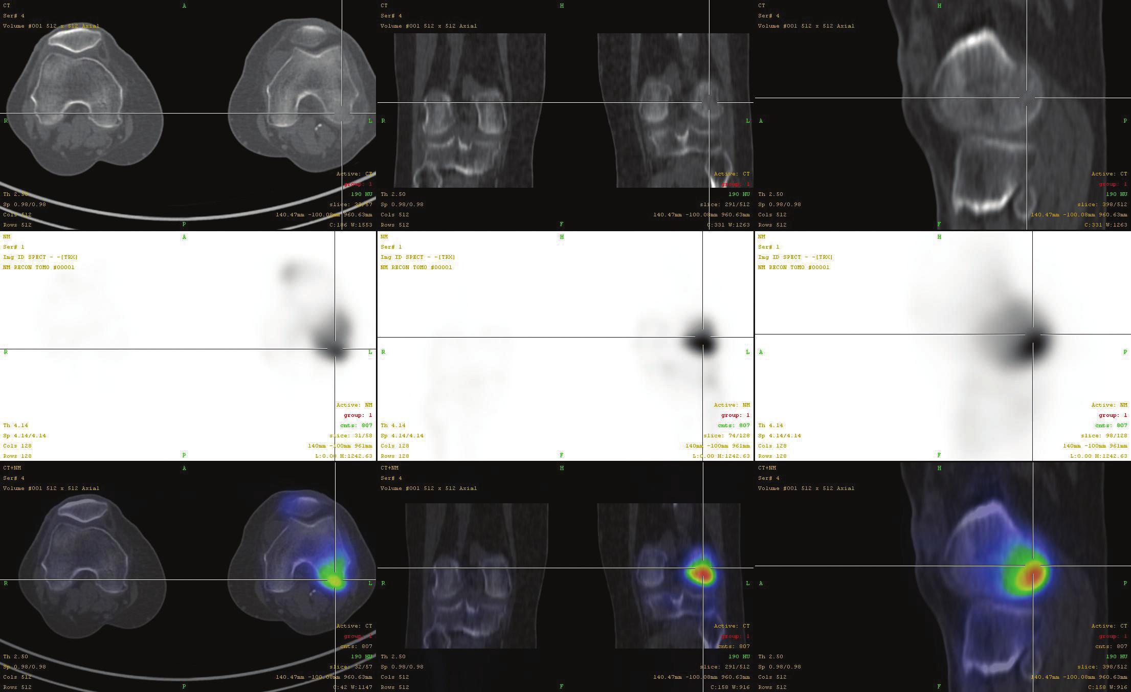Fúze SPECT/CT obrazu u pacienta s disekující osteochondritidou v méně časté lokalizaci v inferocentrální části laterálního kondylu femuru v časném stádiu I. V horní řadě je obraz z LDCT postupně v transaxiální, koronární a sagitální rovině. Střední řada ukazuje odpovídající SPECT řezy. Dolní řada prezentuje odpovídající fúzované SPECT/CT řezy. Scintigrafický nález je v časném stádiu výrazný, nález na LDCT normální.