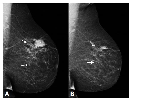 MG l. sin, MLO projekce<br> A) Před NCHT. Ložisko ILC v HZK l. sin označeno klipem. Kaudálně a dorzálně od tumoru nehomogenní zvýšení denzity tukové tkáně odpovídající rovněž maligní infiltraci žlázy (rozsah nálezu je vyznačený dvěma šipkami). B) Po NCHT. Reziduum ca v HZK l. sin, v centru tumoru patrný klip. Zmenšení rozsahu maligní infiltrace žlázy kaudálně a dorzálně od tumoru (rozsah infiltrace je vyznačený dvěma šipkami).<br> Fig. 1: MG l. sin, MLO projection<br> A) Before NCT. ILC in the upper outer quadrant (UOQ) of the left breast, marked with a clip. Non-homogenous, highly dense fatty tissue is found caudally and dorsally to the tumour, which also represents malignant infiltration of the gland (the extent of the finding is depicted by two arrows). B) After NCT. Residual tumour in the UOQ of the left breast; a clip is seen in the centre of the tumour. There is a decrease in the extent of the malignant infiltration of the gland caudally and dorsally to the tumour (the extent of the infiltration is depicted by two arrows).