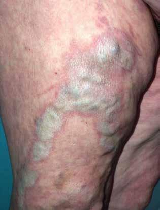 Koebnerův fenomén – lichen sclerosus nad varikózními žilami