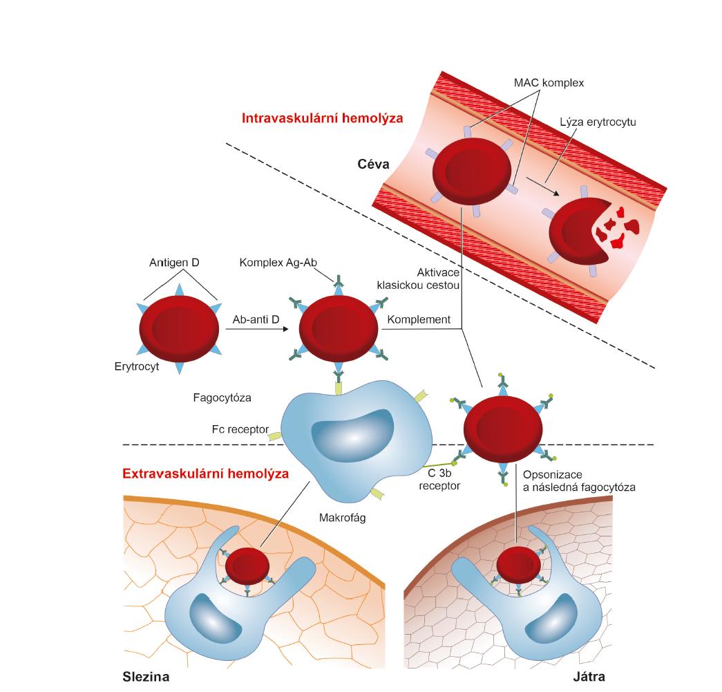 Imunologické mechanismy uplatňující se při destrukci fetálních erytrocytů