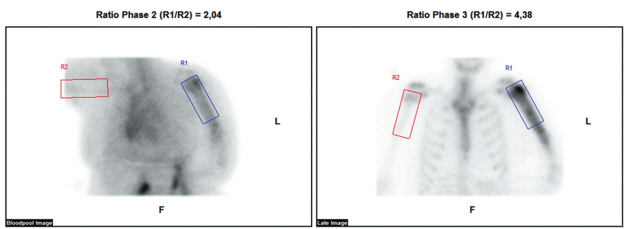 Provedená třífázová scintigrafie skeletu ukazuje ve fázi blood poolu nasnímané 5 minut po aplikaci radiofarmaka zvýšené tkáňové prokrvení v oblasti diafýzy levé pažní kosti. Ve třetí fázi nasnímané za 2 h po aplikaci radiofarmaka je aktivita akumulována zvýšeně v proximálních 2/3 diafýzy s maximem v hlavici laterálně.