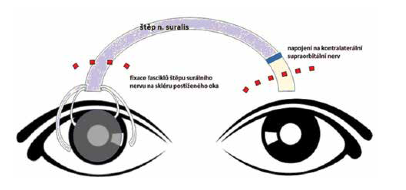 Schéma nepřímé neurotizace rohovky postiženého pravého oka za využití nervového štěpu a kontralaterálního supraorbitálního nervu