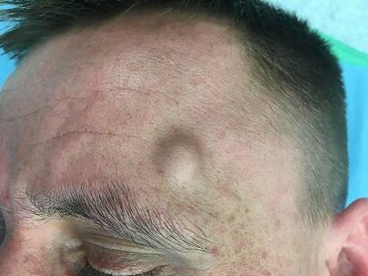 Předoperační fotografie, v čelní krajině vlevo patrná podkožní rezistence.<br> Fig. 1. Preoperative image, the subcutaneous lump is located on the scalp.