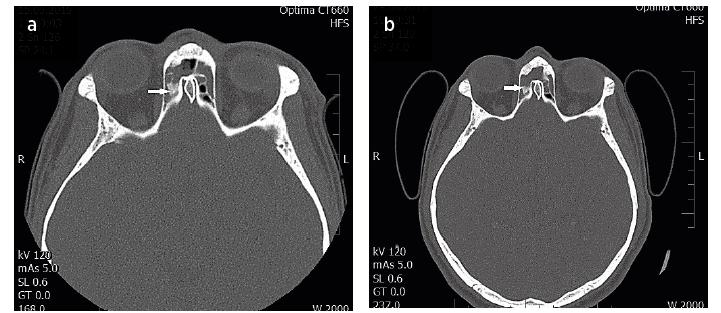 a, 4b Opakované CT vyšetření u pacienta s perzistencí IP. Na snímcích v rozmezí 6 týdnů je patrná primárně neošetřená inzerce tumoru v oblasti lební baze vpravo (šipky).