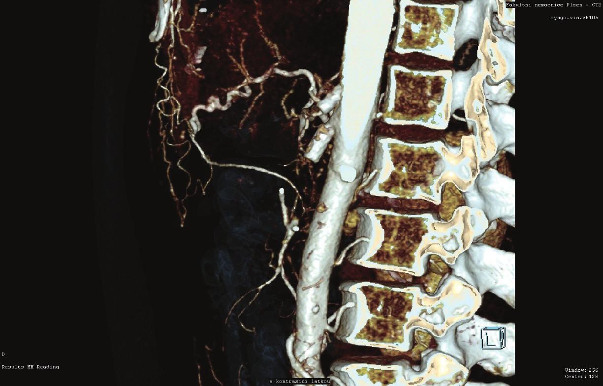 Selhání stentingu TC i AMS (CT AG)<br> Fig. 1: Celiac trunk and superior mesenteric artery failure (CT AG)