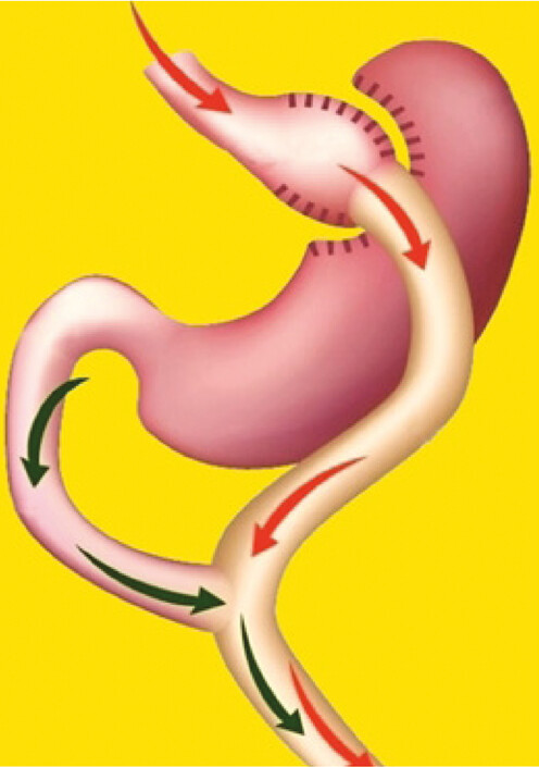 Roux-Y žaludeční bypass
