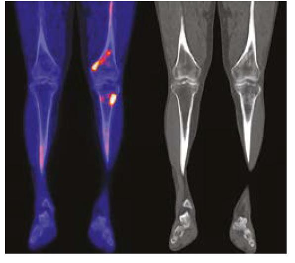 PET CT zobrazení pacineta č 2 DKK NaF a CT