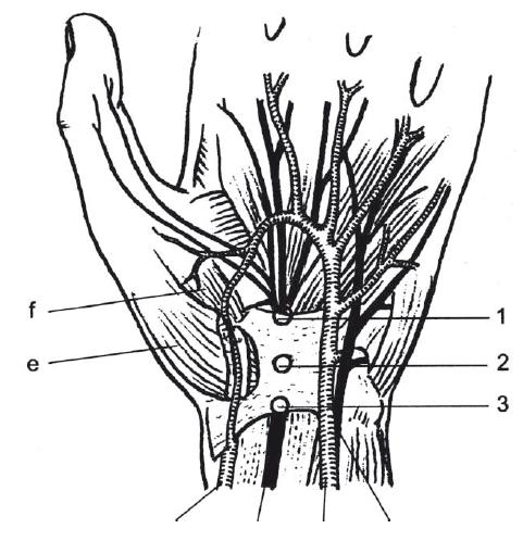 Schéma karpálního tunelu: 1,2,3 – úžiny v různých místech pod ligamentu carpi transversum; e – m. abduktor pollicis brevis; f – m. opponens pollicis [11].<br> Fig. 2. Scheme of carpal tunnel syndrome: 1,2,3 – places of entrapment under ligamentum carpi transversum; e – m. abductor pollicis brevis; f – m. opponens pollicis [11].