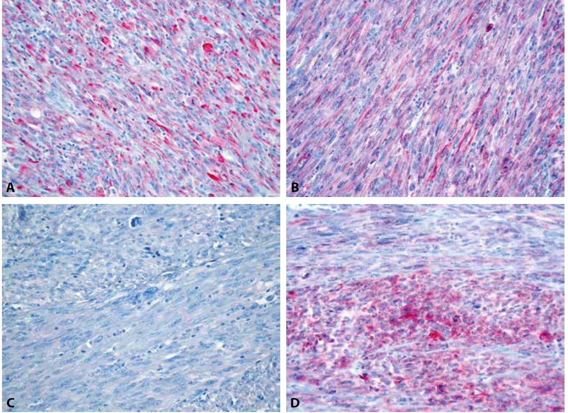 Variabilní exprese desminu (A), h-caldesmonu (B), hladkosvalového aktinu (C) a CD10 (D) v nádorových buňkách (IHC, 400x).
