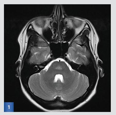 Vstupní MRI: T2-vážený obraz