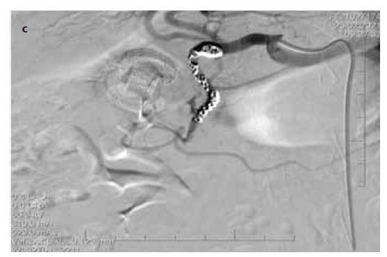 Obr. 3c) Po prvom koilingu angiografické zobrazená extravazácia za koilovanou časťou cievy.<br> Fig. 3c) Angiografic verification of bleeding after first session of coiling.
