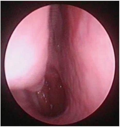 Pohled do nosní dutiny vpravo, endoskopická skupina<br> I – bez vybočení nosní přepážky, bez hypertrofie dolní skořepy.